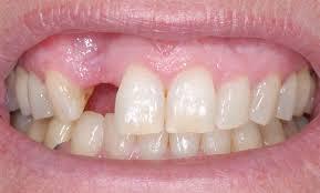 Missing teeth - mendelsohn dental