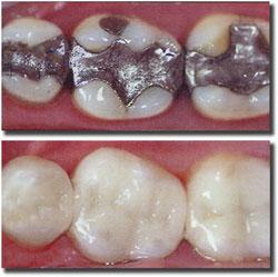 tooth - mendelsohn dental
