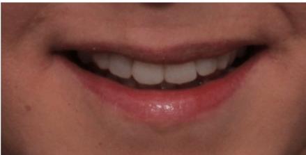 Mendelsohn Dental on royal Patient
