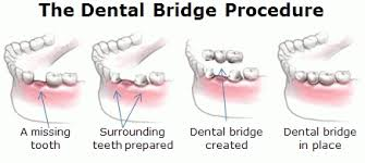 bridge - mendelsohn dental