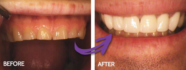 Cosmetic - mendelsohn dental