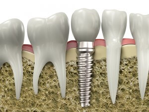 Tooth implant - mendelsohn dental