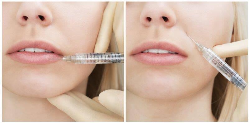 face needles - mendelsohn dental