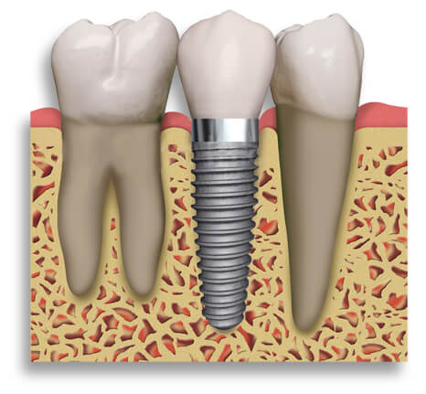 implant - mendelsohn dental