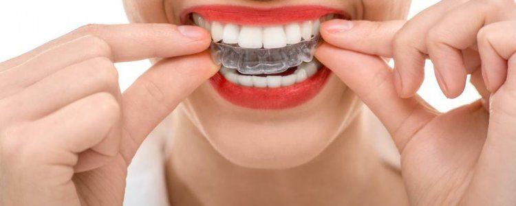 Mouth guard - mendelsohn dental