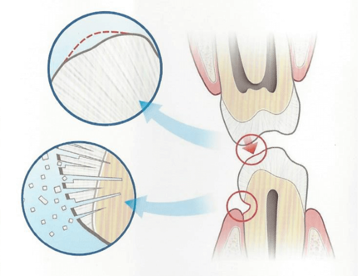 periotrauma - mendelsohn dental