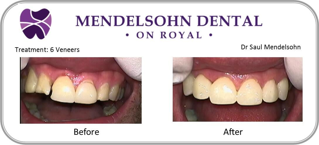 Treatment - mendelsohn dental