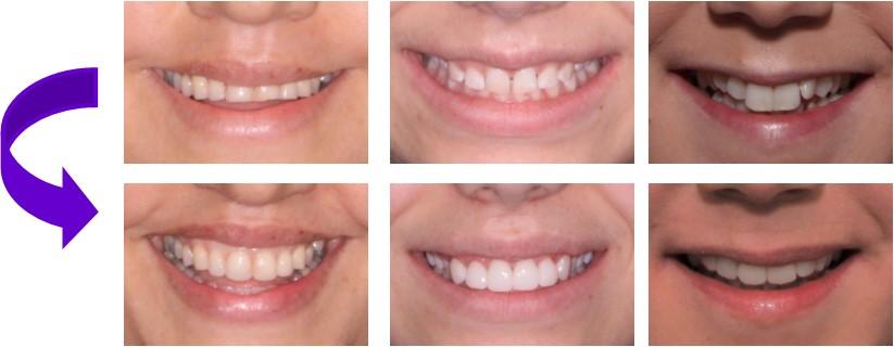 veneers teeth - mendelsohn dental