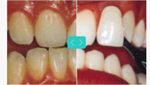 whitening- mendelsohn dental